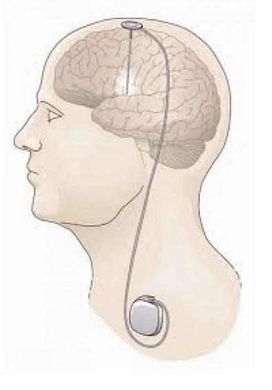 La stimulation cérébrale profonde est une procédure neurochirurgicale impliquant le placement d'un neurostimulateur qui envoie des impulsions électriques à haute fréquence à travers des électrodes implantées au plus profond du cerveau