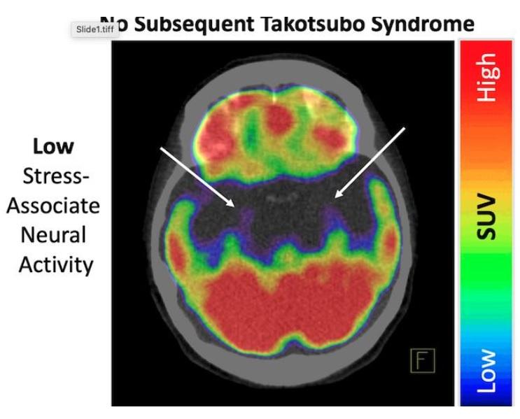 Le TTS, d'ailleurs connu sous le nom de syndrome du «cœur brisé», se caractérise par un affaiblissement soudain et temporaire des muscles cardiaques ce qui fait gonfler le ventricule gauche du cœur vers le bas tandis que le cou reste étroit, créant une forme ressemblant à un piège à poulpe japonais (Visuel European Heart Journal)