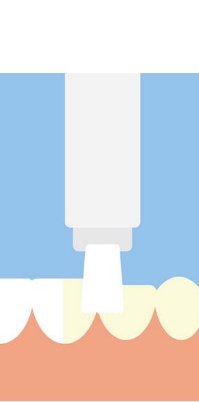 La technique de blanchiment dentaire doit donc bien veiller protéger les gencives et à adapter la concentration de peroxyde dans le gel appliqué sur l'émail dentaire.