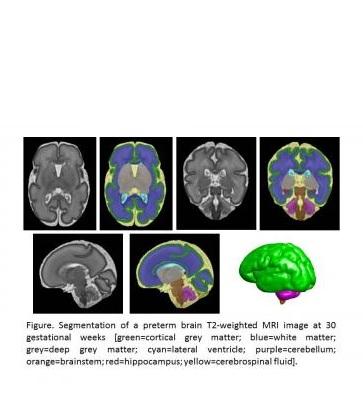 IRM cérébrale d'un bébé prématuré à 30 semaines de grossesse. Le vert représente la matière grise corticale, le bleu la substance blanche, le gris la matière grise profonde, le violet le cervelet, le rouge l'hippocampe