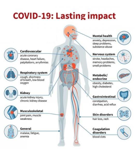 Le COVID-19 a déjà entraîné une charge de morbidité très élevée et l'étendue de l'implication du système organique est considérablement plus importante qu'avec d'autres virus respiratoires (Visuel Sara Moser)