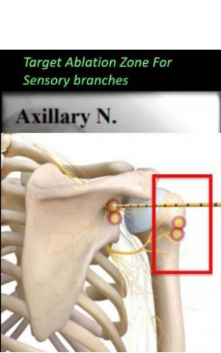 Visuel Radiological Society of North America