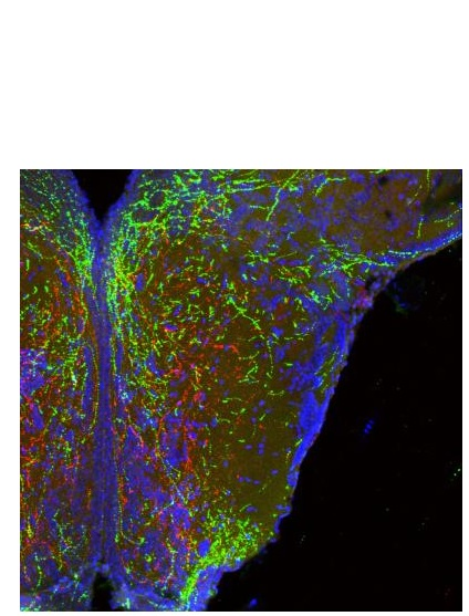 De longues projections filaires de neurones dans l'hypothalamus forment des circuits de poids corporel (en rouge et en vert ).