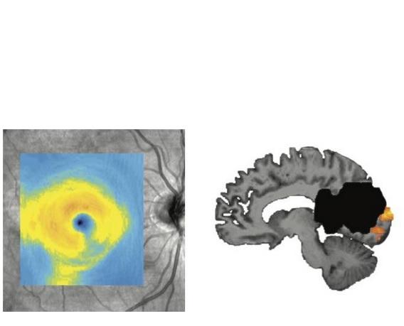 Ce visuel montre une dégénérescence de l'œil (visible sur le coin inférieur droit) après un AVC dans la zone de traitement visuel du cerveau (en noir sur visuel de droite).