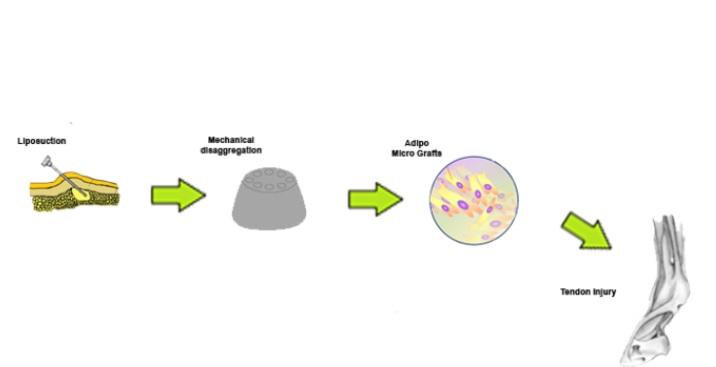 La fraction vasculaire stromale dérivée du tissu adipeux, contient des populations cellulaires hétérogènes telles que des cellules souches/progénitrices mésenchymateuses, des cellules endothéliales, des péricytes, des cellules T et des macrophages M2 (Visuel AlphaMed Press)