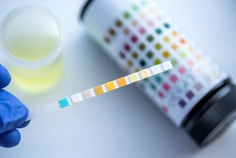 Il s'agit de remplacer les biopsies -avec leurs risques de saignements et de lésions de l'organe greffé – par la mesure de la fluorescence de l'urine pour détecter le rejet de l'organe.