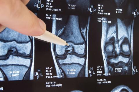 les cellules souches recueillies dans la moelle osseuse du patient s'avèrent ici un traitement prometteur de l'arthrose du genou en raison de leur capacité à régénérer le cartilage endommagé.