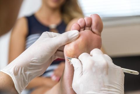 Il est toujours préférable de consulter son médecin ou son dermatologue avant d'entreprendre un traitement contre des verrues douloureuses ou d'aspect évolutif