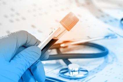 Il s'agit d'un simple test sanguin à la recherche de 2 biomarqueurs naturels associés à la SEP