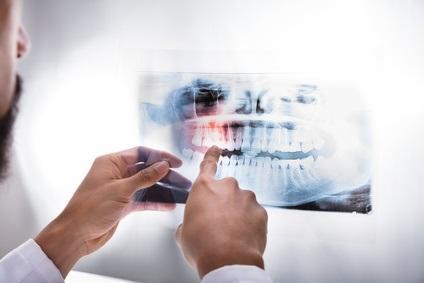 L'hypersensibilité dentinaire affecte entre 8 et 35 % de la population.