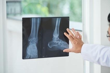 Les fractures ont un impact à long terme sur la qualité de vie des personnes âgées