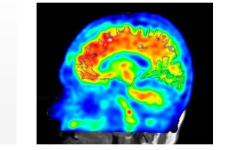 Les patients positifs à l'imagerie « bêta-amyloïde » étaient également ceux commettant un nombre significativement plus élevé d'erreurs d'intrusion sémantique.