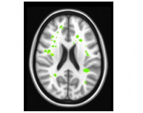Les AVC silencieux (en vert clair sur visuel) ont aussi des effets débilitants sur la fonction exécutive, sur la capacité du cerveau à exécuter des tâches complexes nécessaires pour le maintien d'un travail ou la réussite scolaire.