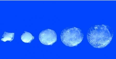 La pilule gonflable comprend un capteur qui surveille en continu la température de l'estomac pendant 30 jours.