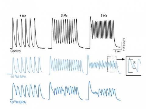 Le cœur immature ou en développement peut répondre au BPA par des troubles ou dysfonctionnements cardiaques, dont des rythmes plus lents ou irréguliers par exemple