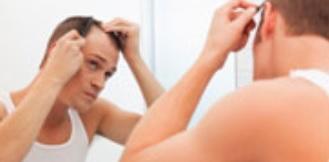 Près de 70% des hommes sont touchés par une calvitie ou alopécie androgénétique