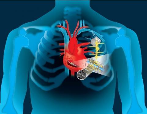 Exploiter la puissance du rythme cardiaque pour recharger son stimulateur ou « les batteries du coeur »