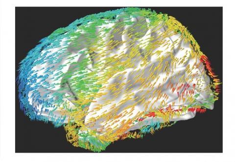 Les oscillations cérébrales se déplacent de manière rythmique à travers le cerveau, reflétant les modèles d'activité neuronale qui se propagent à travers le cortex