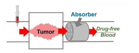 Cette éponge médicamenteuse pourrait minimiser les effets secondaires des chimiothérapies