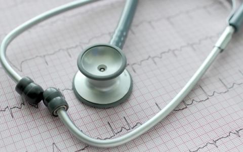 La fibrillation auriculaire est le trouble du rythme cardiaque le plus courant, et la cause de 20 à 30% des accidents vasculaires cérébraux (AVC).