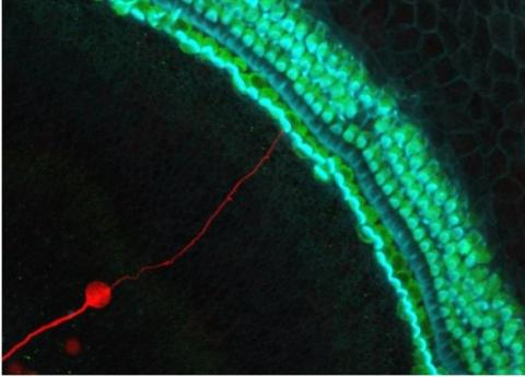 Il s'agit d'abord de surexprimer un gène, NEUROG1, pour transformer les cellules souches de l'oreille interne en neurones auditifs