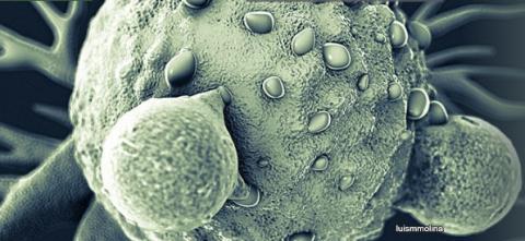 HIPP cible CtBP déclenche le développement de cellules souches cancéreuses, qui sont à l'origine des polypes