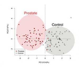 CANCER de la PROSTATE: Odoreader, le test qui le détecte dans les ...