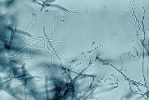 Cette bactérie qui vit dans « la poussière » démontre une activité anticancéreuse puissante, sélective contre les cellules de mélanome.