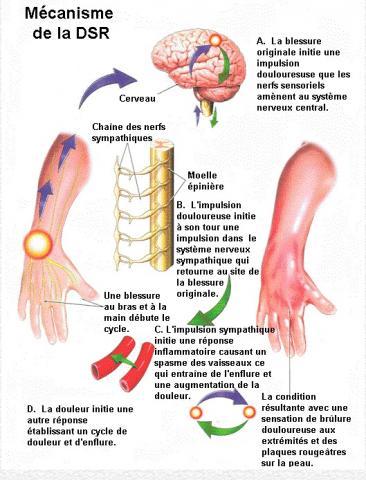 Le syndrome douloureux régional complexe est caractérisé par une douleur handicapante dans un bras ou une jambe