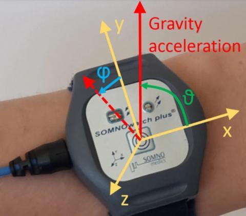 Le tracker détecte le moindre mouvement, même si le bras du patient tourne légèrement lorsqu'il respire pendant son sommeil (Visuel Universitätsmedizin Berlin)