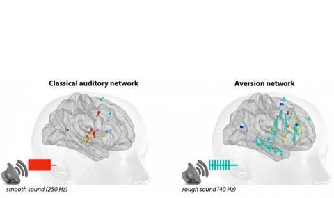 Un son « d'alarme » (entre 40 et 80 Hz) sollicite un grand nombre de régions corticales et sous-corticales qui n'appartiennent pas au système auditif classique