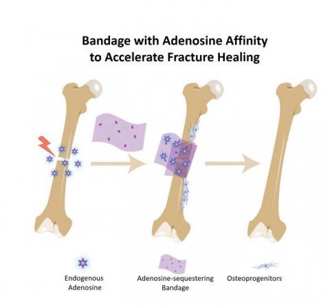 il s'agit d'un bandage de biomatériau appliqué directement sur l'os brisé qui contient des molécules de boronate qui s'accrochent à l'adénosine