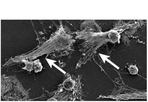 Les neutrophiles explosent et libèrent ces filets antimicrobiens composés de fibres d'ADN (Voir visuel noir et blanc), des enzymes bactéricides et des molécules pro-inflammatoires.