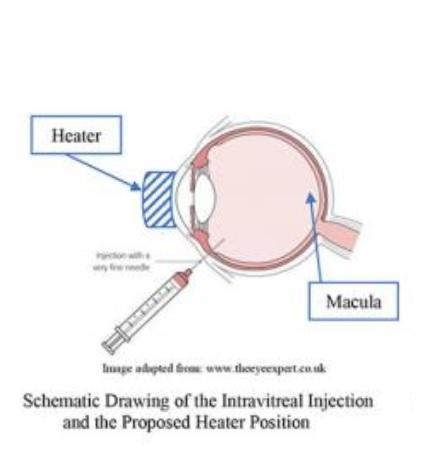 Une étape de chauffage léger après l'injection pourrait optimiser l'efficacité des anti-VEGF