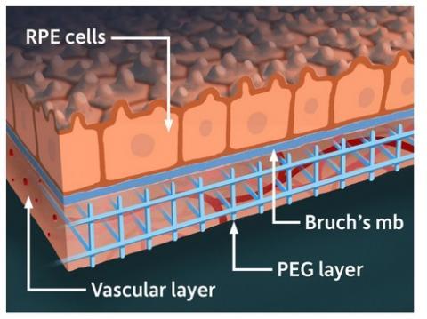 Le modèle combine des tissus rétiniens dérivés de cellules souches et des réseaux vasculaires de patients humains reproduits avec des matériaux synthétiques, dans une « matrice » tridimensionnelle (Illustration de l'Université de Rochester / Michael Osadciw)
