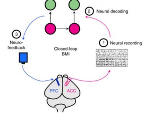 Lorsque les signaux de douleur sont détectés, l'ordinateur déclenche une stimulation thérapeutique d'une autre zone du cerveau, le cortex préfrontal, qui apporte un soulagement (Visuel  Nature Biomedical Engineering)