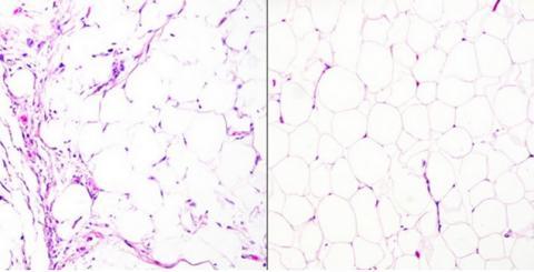 Un liposarcome (à gauche sur visuel) vs un lipome bénin (à droite) (Visuel Tony Ng, MD, PhD, The University of British Columbia)