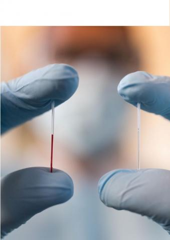 Il fallait trouver un moyen d'extraction de ce fluide corporel encore inexploré et pourtant riche de biomarqueurs (Allison Carter, Georgia Tech)
