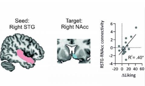 La connexion entre circuits cérébraux auditifs et de la récompense sous-tend le plaisir musical (Visuel Mas-Herrero et al., JNeurosci 2021)