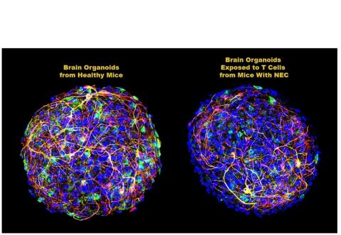Sur des organoïdes, des cellules cérébrales de souris cultivées en laboratoire pour simuler l'ensemble du cerveau, l'ajout de cellules T CD4 + dérivées du cerveau de souris atteintes de NEC induit l'augmentation d'un signal chimique spécifique des cellules T - une cytokine (protéine inflammatoire) connue sous le nom d'interféron-gamma (IFN-gamma) (Visuel C. Zhou, C. Sodhi and D. J. Hackam, Johns Hopkins Medicine)