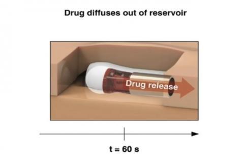 La capsule fournit également une dose de naloxone plus importante que les produits actuellement disponibles sur le marché, ce qui la rend plus efficace.