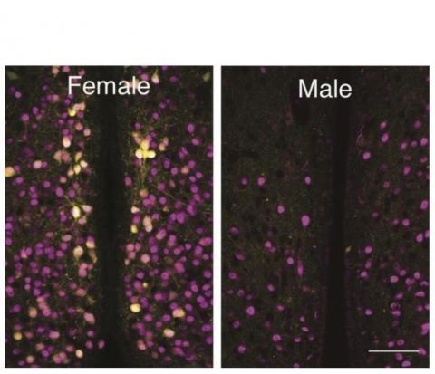 L'expression des récepteurs de l'ocytocine dans ces cellules n'est présente que lorsque des œstrogènes sont également présents.