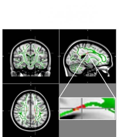 Ces réductions de FA sont identifiées principalement dans le corps calleux, un faisceau de fibres nerveuses qui relie les hémisphères gauche et droit du cerveau, dans le gyrus orbitofrontal moyen, une région du cerveau impliquée dans le contrôle des émotions et dans le circuit de récompense.
