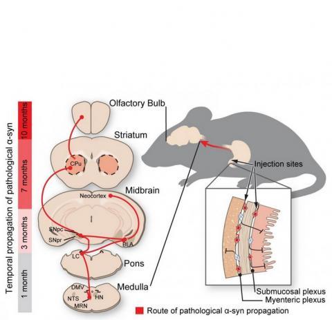 La protéine mal repliée progresse le long des nerfs reliant l'intestin et le cerveau, « comme si elle montait à l'échelle ».