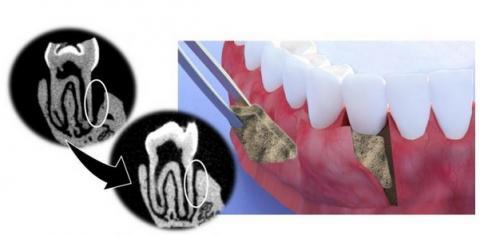 Le revêtement accélère la régénération osseuse en favorisant la minéralisation de l'hydroxyapatite, le minéral constituant l'émail des dents et les os