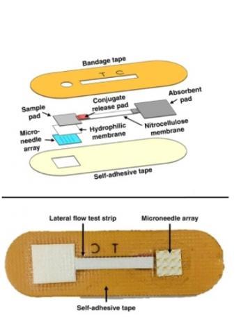 si les micro-aiguilles et les bandelettes de test d'anticorps ont été largement étudiées et développées, c'est la première fois que ces 2 technologies sont combinées en un dispositif simple et peu coûteux