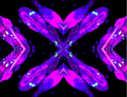 Peau et follicules pileux de souris, présentant des lésions de l'ADN -en vert- dans l'épithélium de la peau- Cellules souches du follicule pileux -en violet-