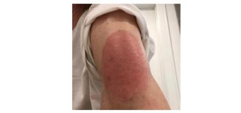 Certaines réactions cutanées importantes, plus sévères, rouges, parfois en relief, qui démangent ou douloureuses n'ont jamais été complètement caractérisées ni expliquées(Visuel Massachusetts General Hospital)