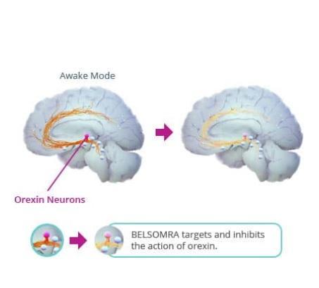 Les antagonistes des récepteurs de l'orexine (DORA) ciblent plus sélectivement les voies de sommeil / veille du cerveau
