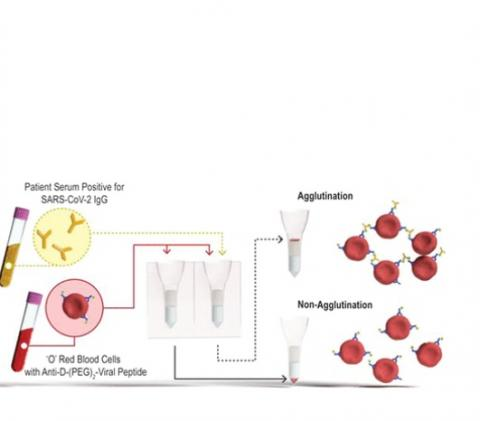 Si l'échantillon contient des anticorps contre le SRAS-CoV-2, ces anticorps se lient aux peptides et entraînent l'agrégation des globules rouges. (Visuel Monash University)